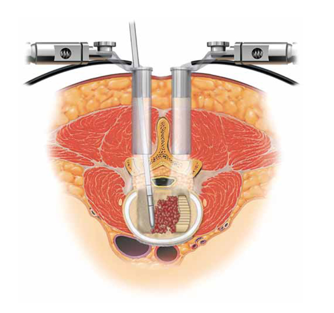 PLIF: Posterior Lumbar Interbody Fusion