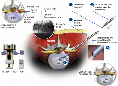 YESS Selective Endoscopic Discectomy™